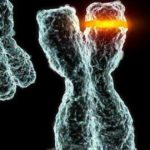 Cromosoma. Asociación Síndrome Phelan Mcdermid